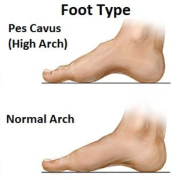 Bsc- Foot Posture Assessment