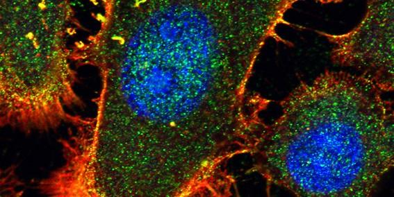 Motive aus der Ausstellung: Wenn Krebszellen durch den Körper wandern, um Metastasen zu bilden, nutzen sie dafür ihr bewegliches Skelett (rot). ...<address>&copy; Florian Heßner, Volker Gerke, Ursula Rescher</address>